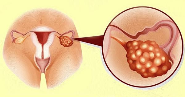 Разбираемся, что именно приводит к появлению поликистозных яичников и существуют ли эффективные методы избавления от этой болезни...
