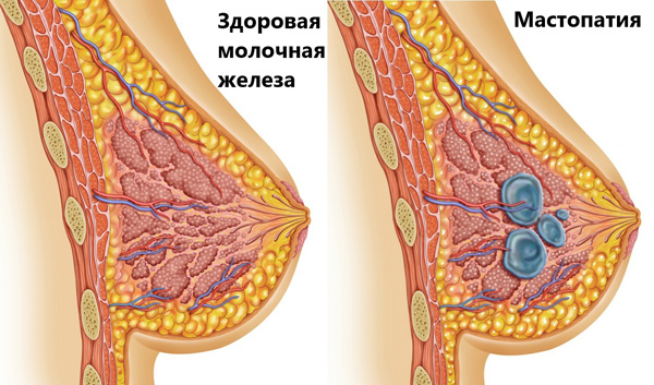 Поликистоз нередко сопровождается мастопатией
