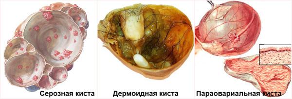 Виды органических кист яичника