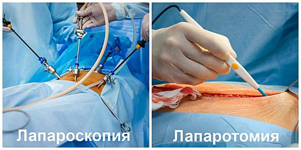Лапароскопическая и полостная операции