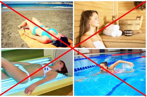 Запрет на тепловые процедуры после операции по удалению кисты