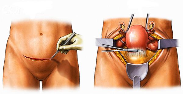 Лапаротомия (полостная операция) на органах малого таза