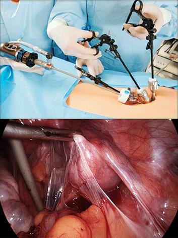 Сальпингоовариолизис (операция по иссечению спаек)