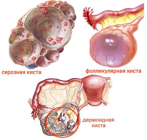 Виды кист яичника у плода