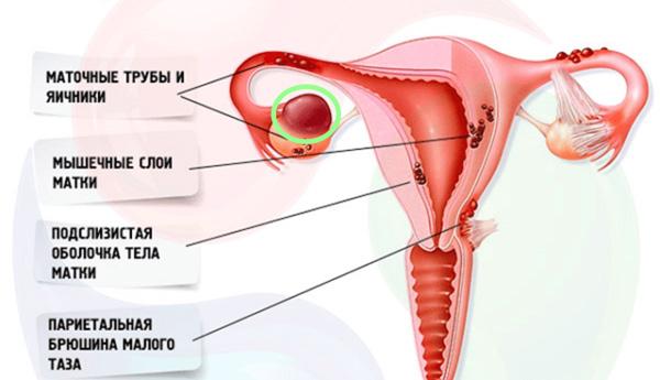 Эндометриоз и эндометриоидная киста могут стать причиной бесплодия