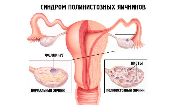 Поликистозный яичник и норма