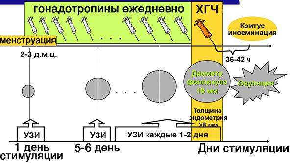 Короткий протокол стимуляции яичников