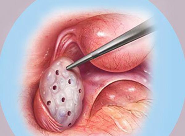 Процесс каутеризации яичников