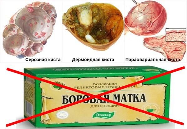 Органические кисты яичника не лечатся боровой маткой
