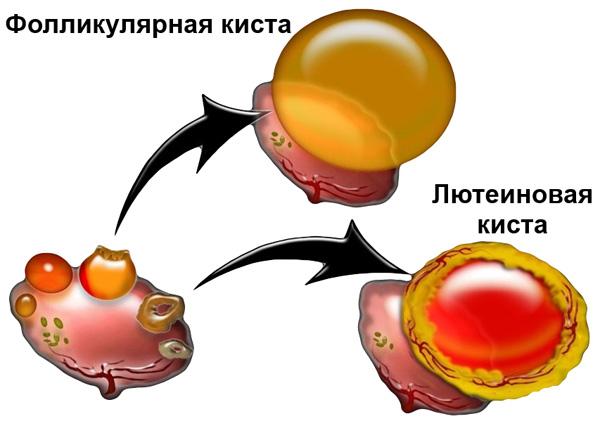 Функциональные кисты яичника