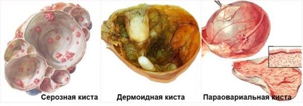 Органические кисты яичника