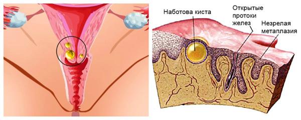 Образование ретенционной кисты