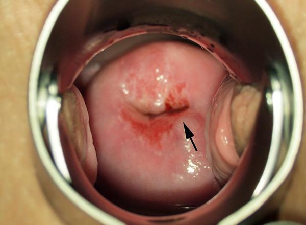 Ретенционная киста и воспаление на шейке матки