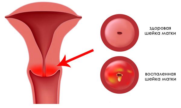 Воспаление шейки матки при наботовой кисте
