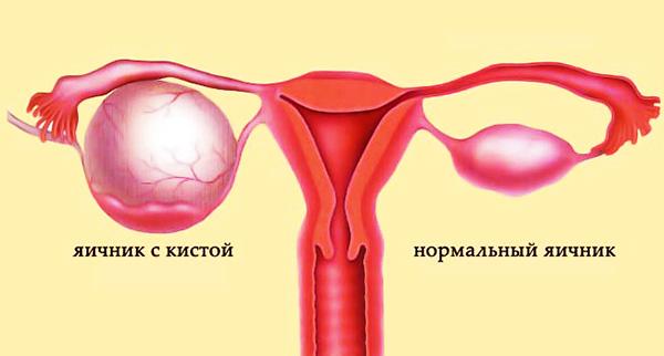 Киста яичника и состояние нормы