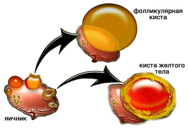 Формирование функциональных кист яичника