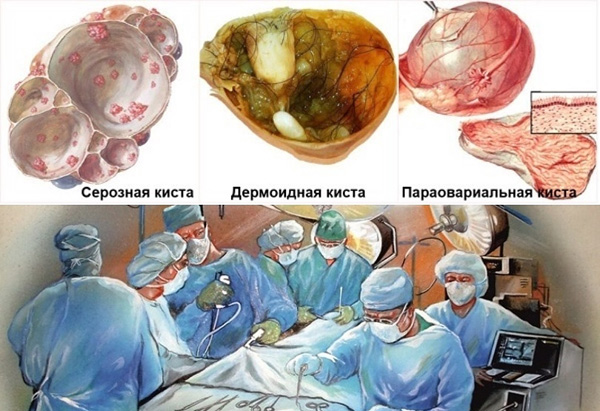 Хирургическое лечение органических кист - единственный способ их устранения