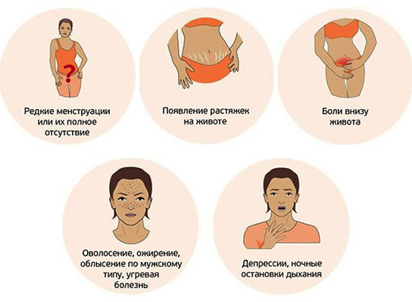 Симптомы СПКЯ