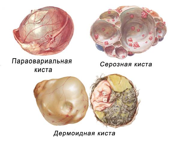 Органические кисты яичника не лечатся медикаментами