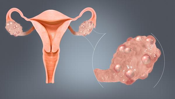 О склерокистозе яичников и основных подходах к его лечению...