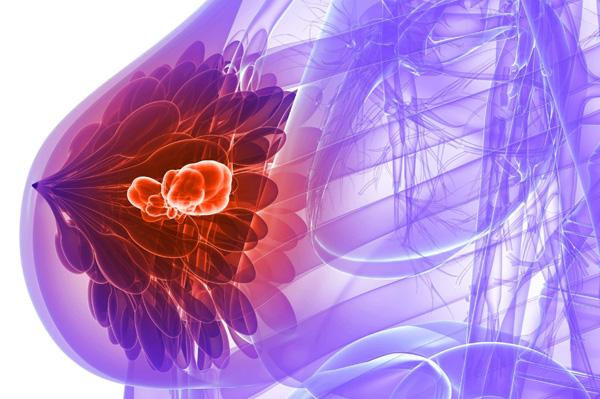 Мастопатия при склерокистозе яичников