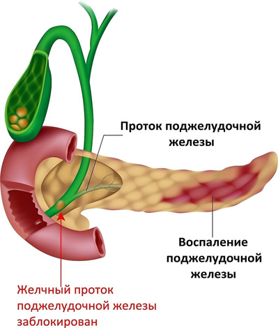 Воспаление поджелудочной железы при поликистозе