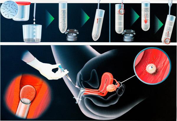 Схема ЭКО при поликистозе яичников