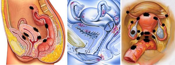 Эндометриоз при кисте шейки матки