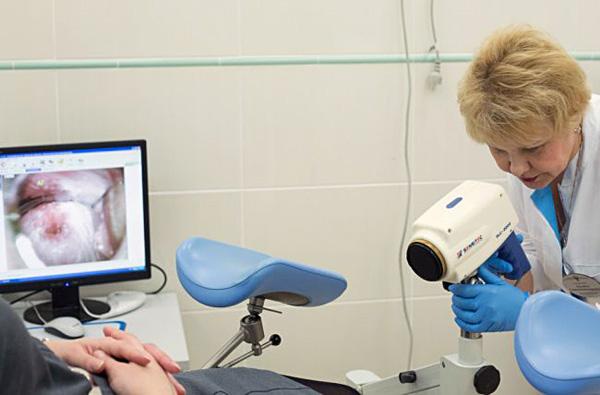 Кольпоскопия шейки матки при цервикальной кисте помогает обнаружить нетипичные изменения