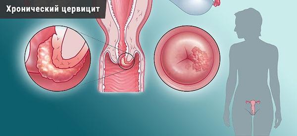 Воспаление эндоцервикса нередко ведет к появлению наботовых кист