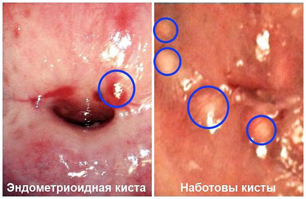 Виды парацервикальных кист