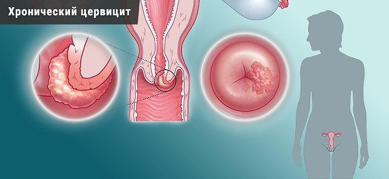 Киста шейки матки и хронический цервицит часто взаимосвязаны