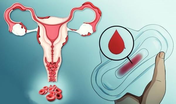 Ациклические выделения - один из симптомов эндометриоидной кисты шейки матки