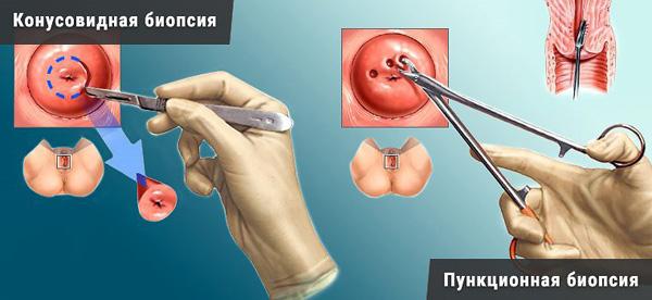 Биопсия шейки матки позволяет определить тип кисты