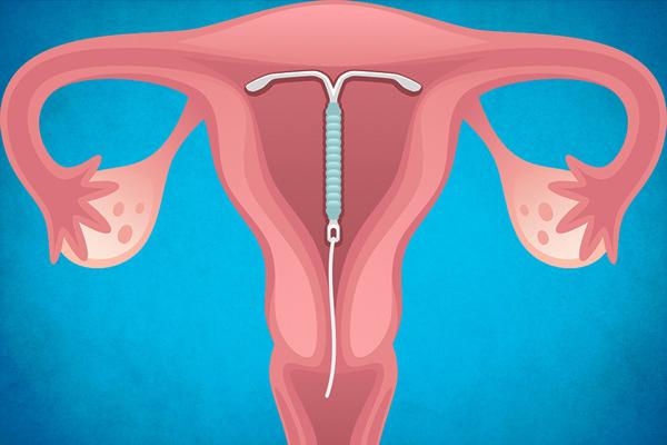 Разбираемся, как спираль Мирена воздействует на женский организм и может ли она помочь в лечении аденомиоза...