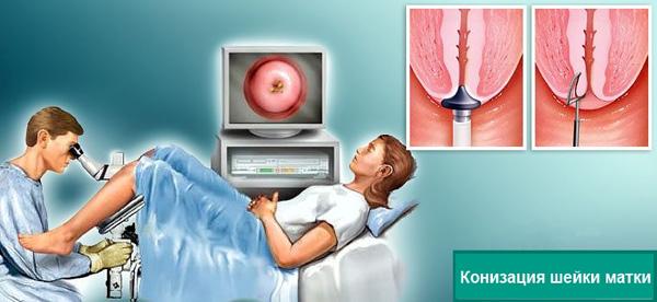 Конизация шейки матки при лечении цервикальной кисты практикуется в редких случаях