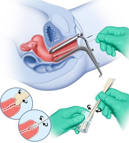 Мазок на онкоцитологию перед процедурой прижигания