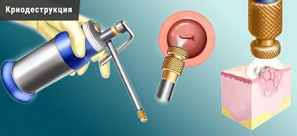 Криодеструкция в лечении кисты шейки матки