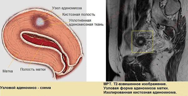 Узловой аденомиоз следует дифференцировать с миомой