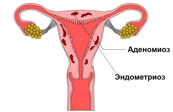 Аденомиоз и эндометриоз в большинстве случаев сочетаются друг с другом