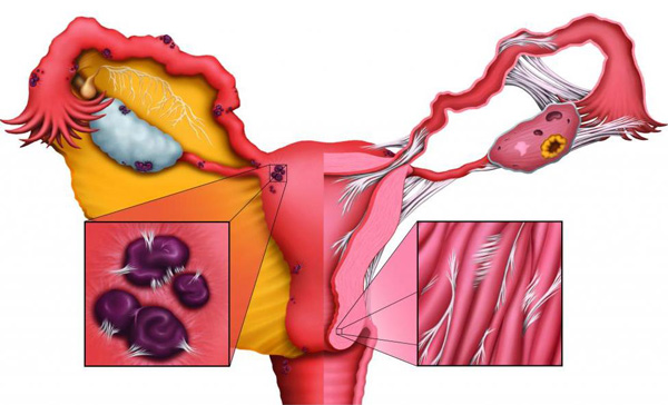 Эндометриоз способствует формированию спаек