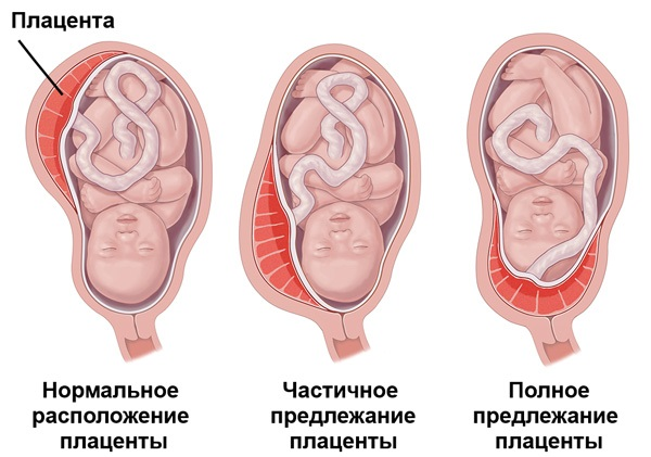 Предлежание плаценты при аденомиозе