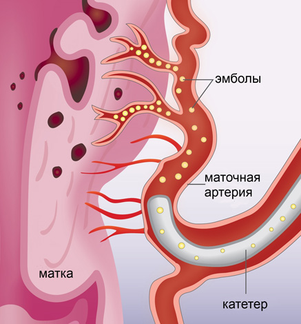 Эмболизация маточных артерий при аденомиозе
