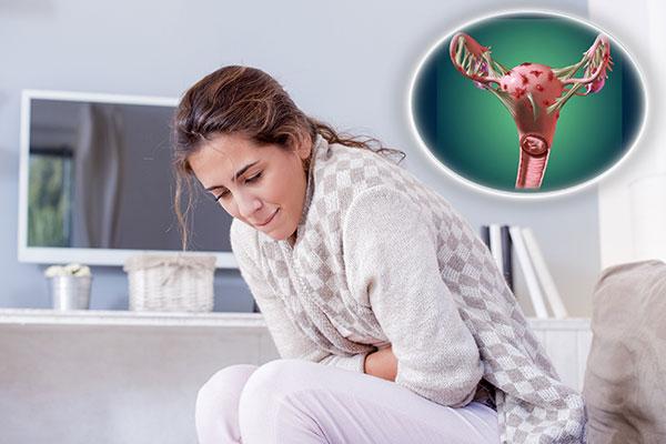 Определяем, какие боли характерны для эндометриоза и есть ли эффективные способы избавления от них...