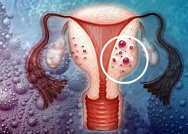 Посмотрим, чем характеризуется диффузная форма аденомиоза и зависит ли от этого выбор методов лечения данной патологи...