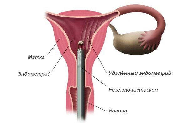 Аблация эндометрия при аденомиозе