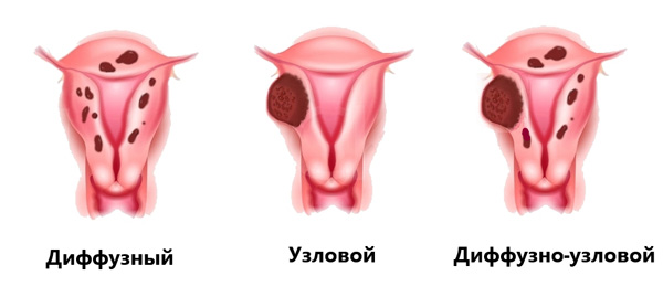 Выделяют 3 формы аденомиоза