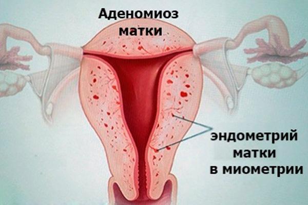Очаги аденомиоза