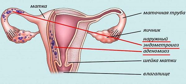 Наружный и внутренний эндометриоз (аденомиоз)