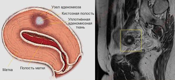 МРТ-снимок узлового аденомиоза